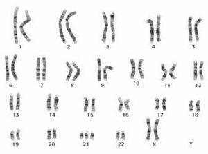 síndrome de down cromossomos