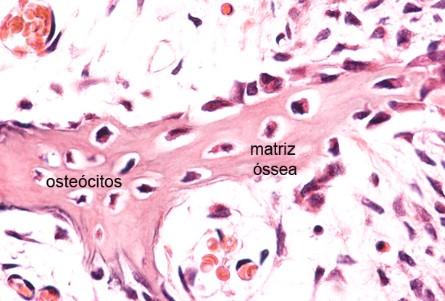 tecido conjuntivo osseo