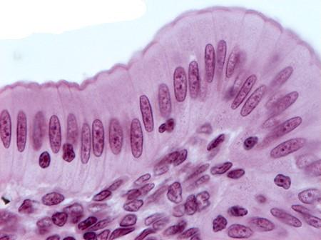 tecido epitelial colunar