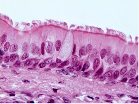 tecido epitelial pseudoestratificado