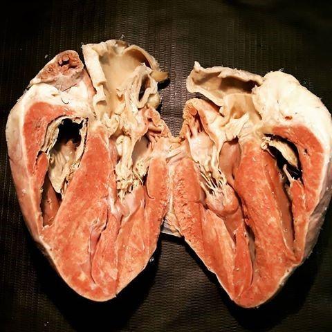 coração humano e tecido muscular