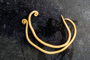 ascaris lumbricoides ascaridíase