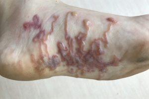 lesões bicho geográfico
